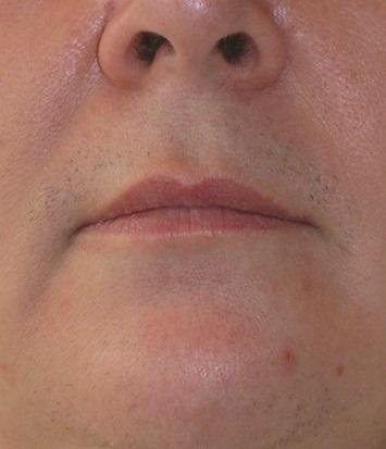 Gesicht vorher